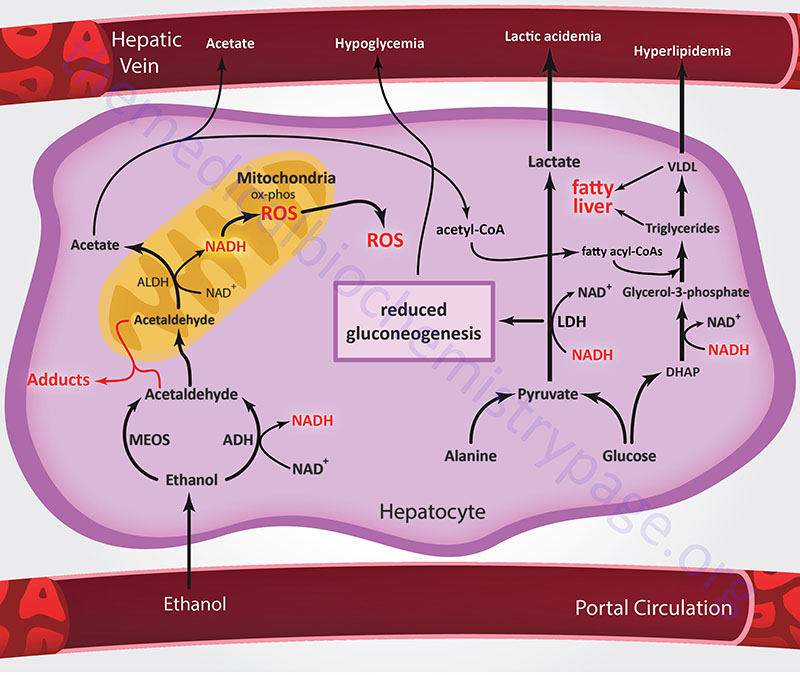 metabolic disruptions in liver due to alcohol metabolism